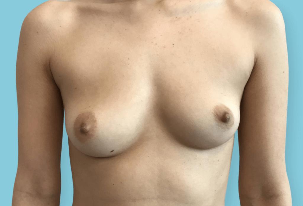 Asymetria piersi. Symetryzacja piersi protezami okrągłymi 375ml, 355ml.