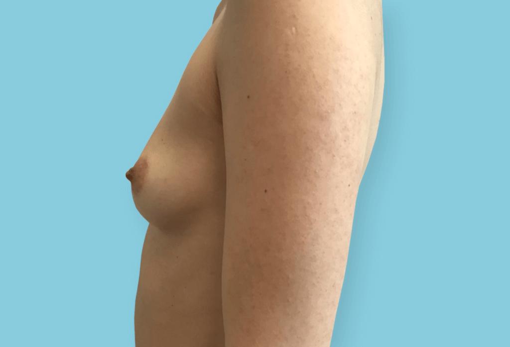 Asymetria piersi. Symetryzacja piersi protezami okrągłymi 375ml, 355ml
