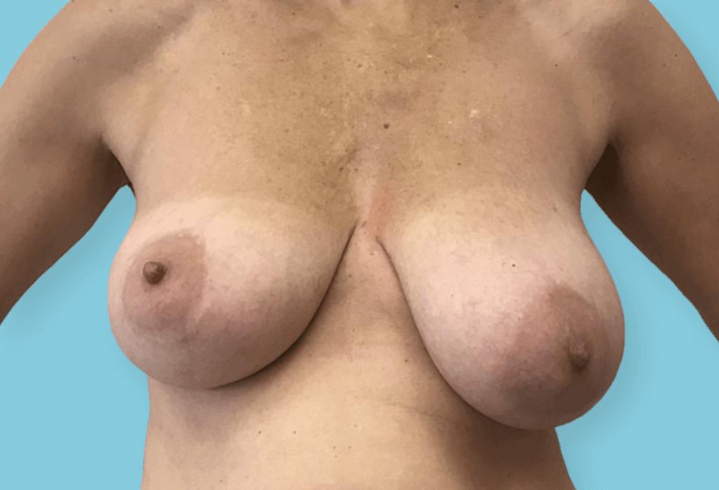 Obustronne podniesienie piersi z redukcją celem symetryzacji