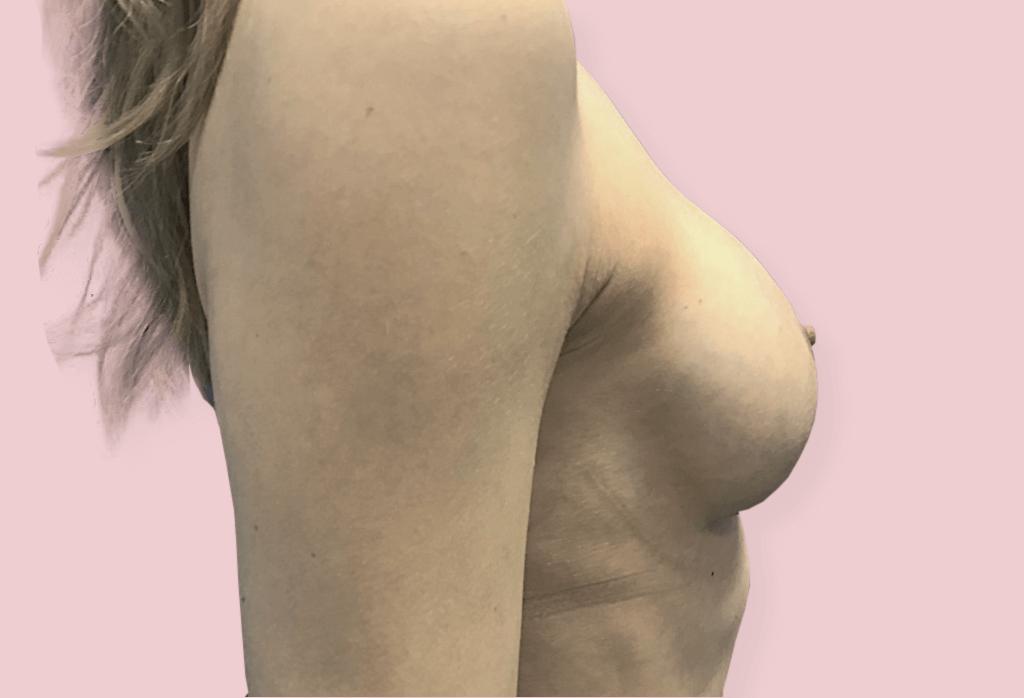 Powiększenie protezami anatomicznym 370 cc