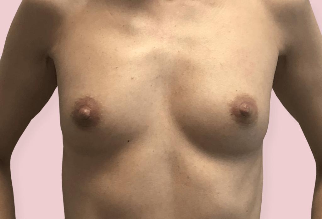 Powiększenie protezami B-Lite 345