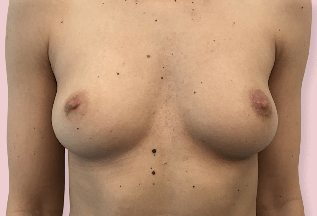 Before-Powiększanie piersi