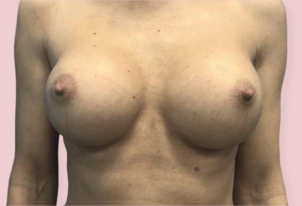 Powiększenie (rekonstrukcja zaniku piersi) protezami okrągłymi