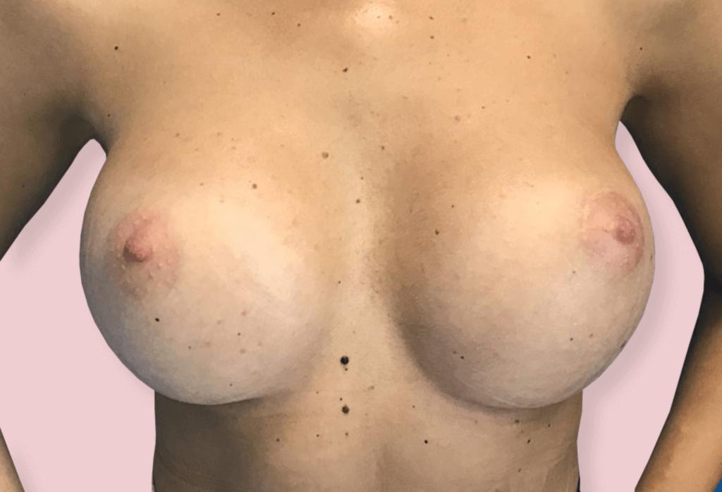 After-Powiększanie piersi