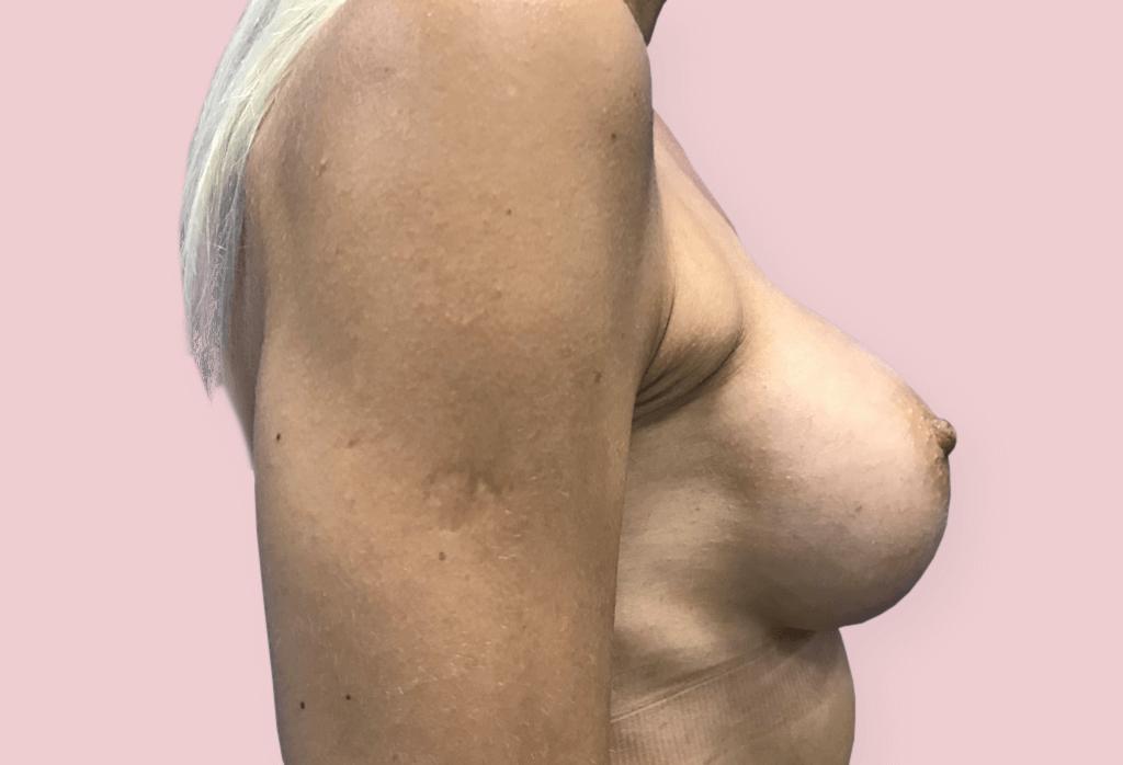 Rekonstrukcja piersi (powiększenie) protezami anatomicznym 280 cc.