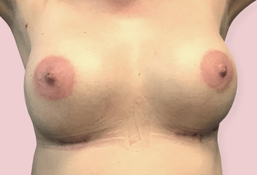 Powiększenie piersi protezami anatomicznym 350 cc