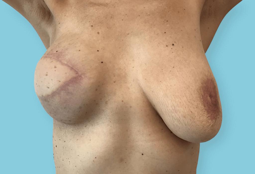 Rekonstrukcja piersi płatem LD z pleców i protezą z symetryzacją piersi lewej przez podniesienie piersi