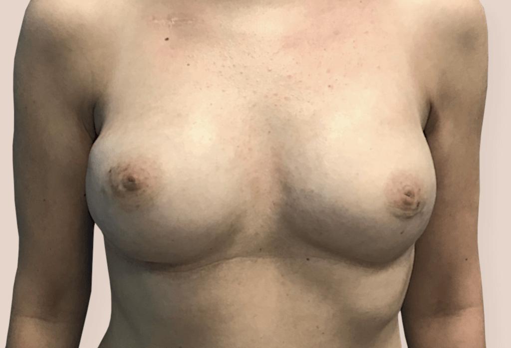 Pierś lewa leczenie raka piersi
