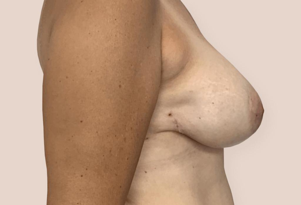Mutacja BRCA1