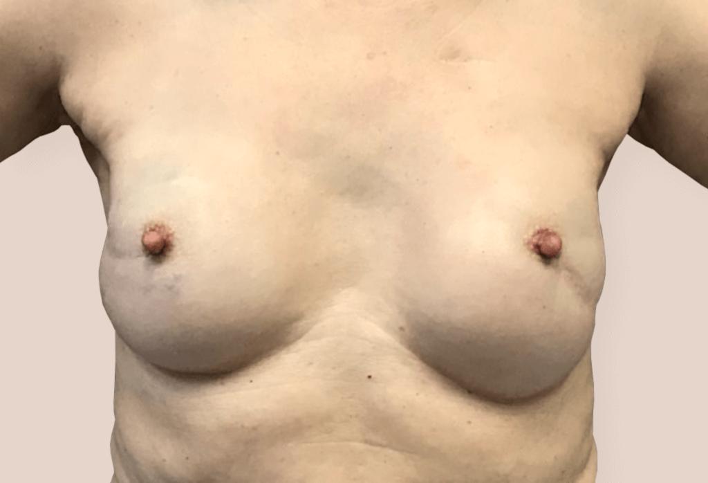 Obustronna amputacja piersi