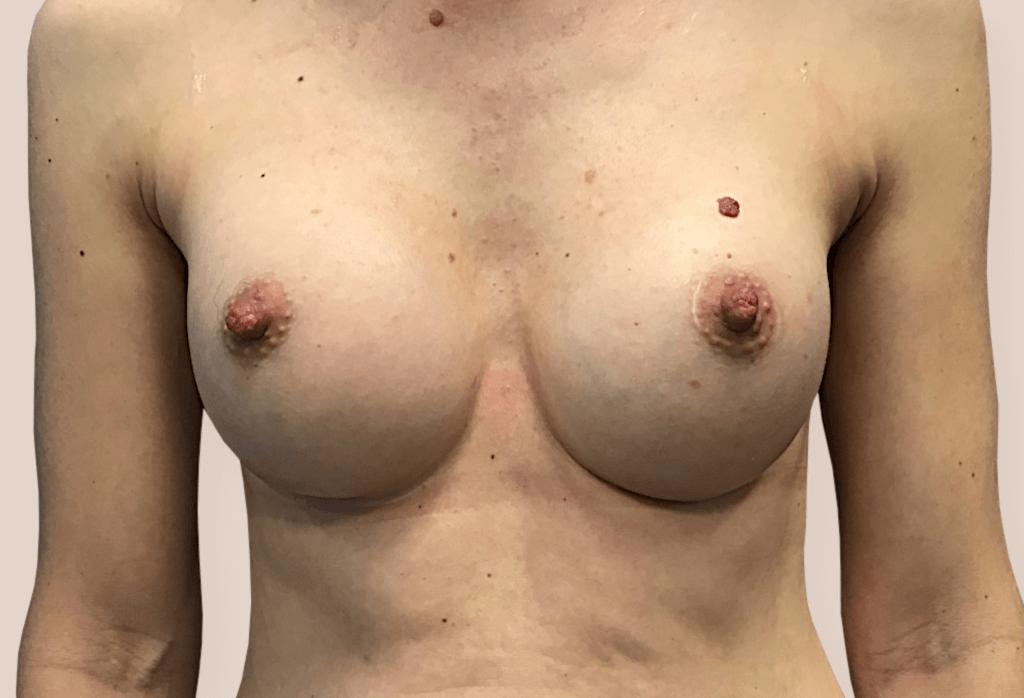 Rekonstrukcja po porodowym zaniku piersi, blizny w fałdzie podsutkowym