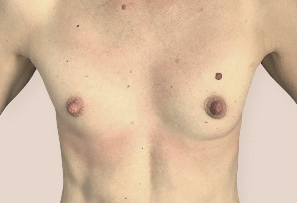 Before-Rekonstrukcja piersi