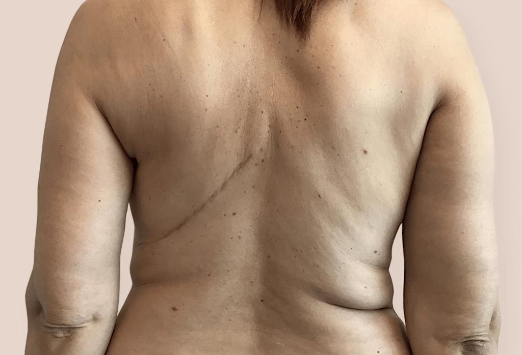 Stan po amputacji piersi lewej i radioterapii. Rekonstrukcja piersi lewej płatem LD i ekspanderem, a następnie wymiana na protezę.