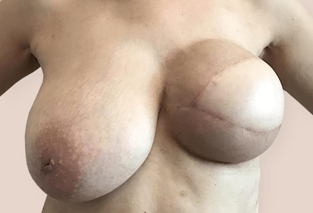 Rekonstrukcja piersi lewej płatem LD i ekspanderem, a następnie wymiana na protezę