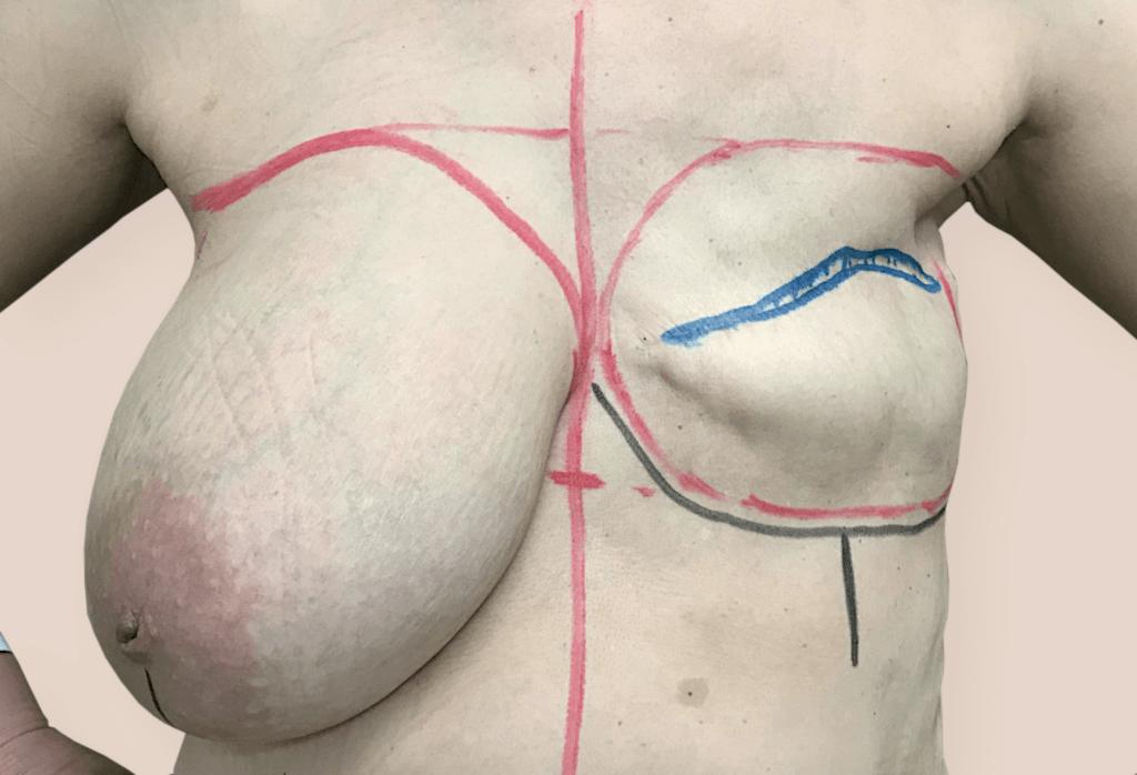 Stan po amputacji piersi lewej i radioterapii.