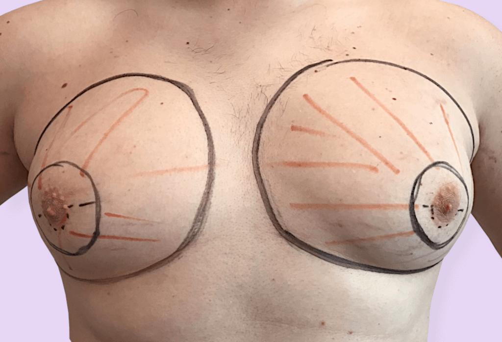 Wycięcie ginekomastii z liposukcją klatki piersiowej