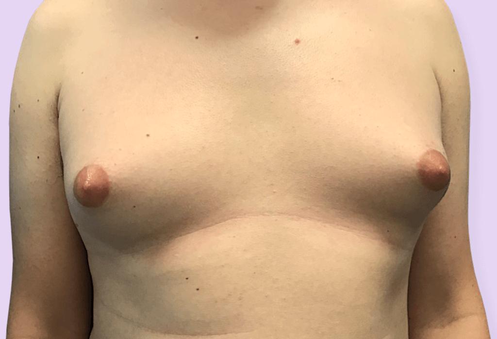 Męskie piersi
