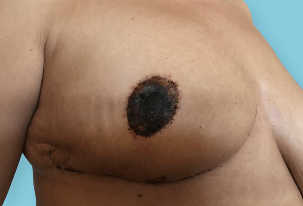 Stan po amputacji piersi prawej z jednoczasową rekonstrukcją i symetryzacja piersi lewej przez podniesienie z redukcją