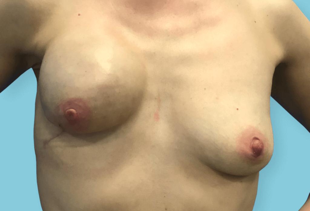 Stan po amputacji piersi prawej z powodu raka i jednoczasowej rekonstrukcji ekspanderem