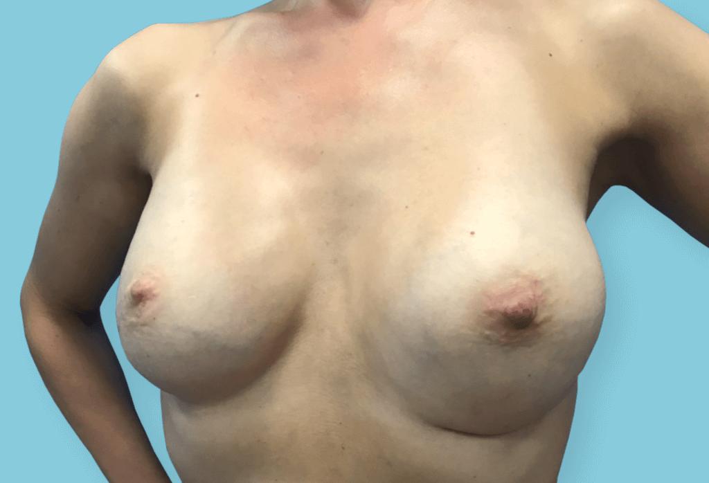Symetryzacja piersi lewej przez wszczepienie protezy