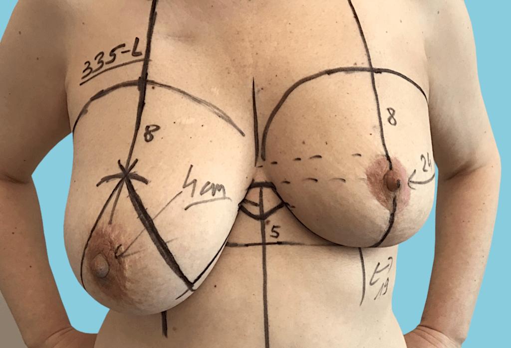 Stan po leczeniu oszczędzającym raka piersi lewej i radioterapii, symetryzacja piersi prawej przez podniesienie i redukcje