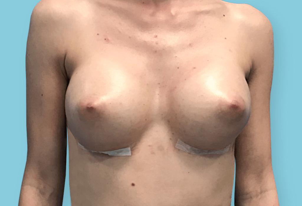 Symetryzacja piersi