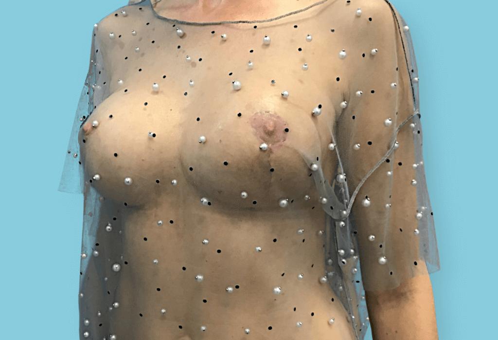 Symetryzacja przez powiększenie różnymi implantami oraz podniesienie i redukcje piersi