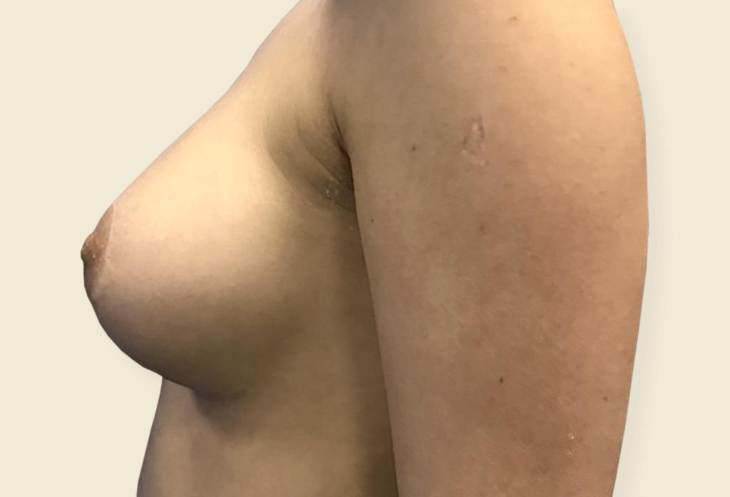 Leczenie piersi tubularnych - bulwiastych przy użyciu protez i plastyki brodawek oraz lipomodelingu