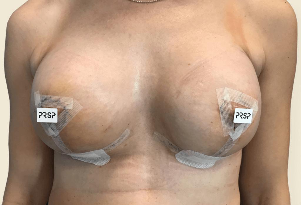 Powiększenie, podniesienie, symetryzacja piersi