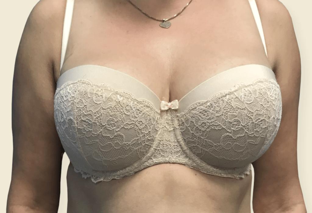 Stan po wycięciu piersi dodatkowych i redukcji piersi, brodawka sutkowa na szypule centralnej.