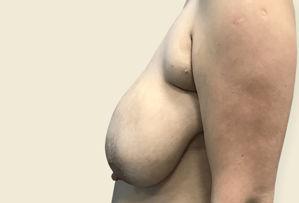 Ogromny przerost piersi, piersi dodatkowe z brodawkami sutkowymi w dołach pachowych
