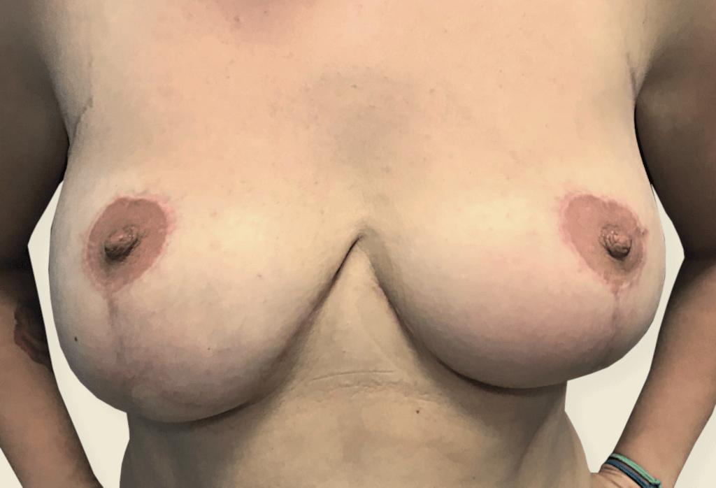 Stan po wycięciu piersi dodatkowych i redukcji piersi, brodawka sutkowa na szypule centralnej