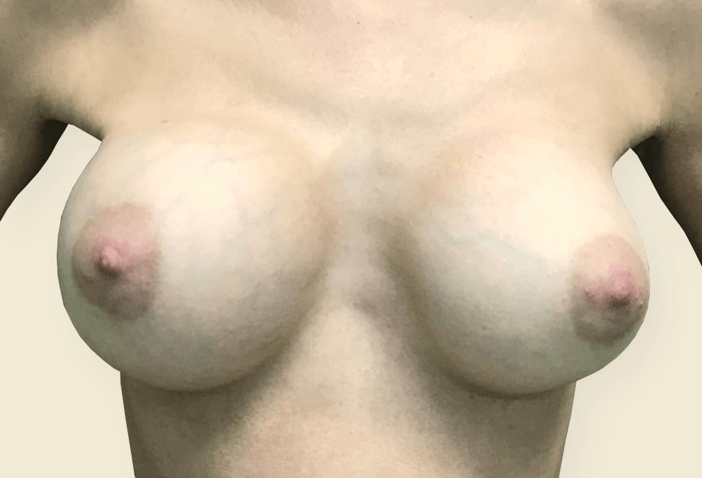 Stan po pęknięciu implantów