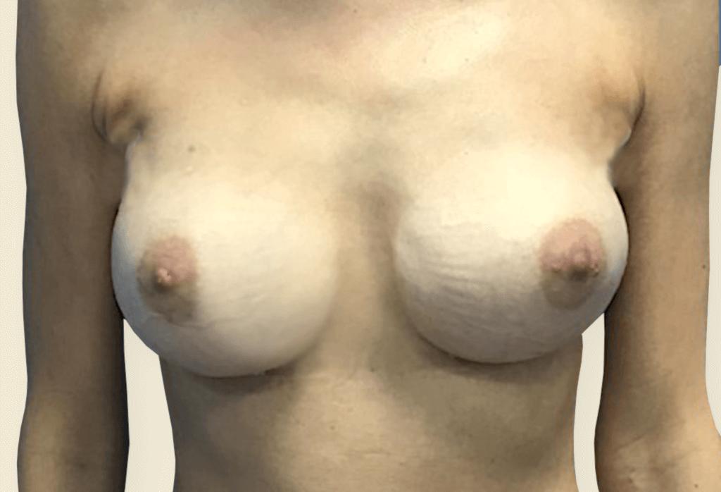 Usunięcie implantów razem z torebką włóknistą i jednoczasowa rekonstrukcja protezami anatomicznym 235