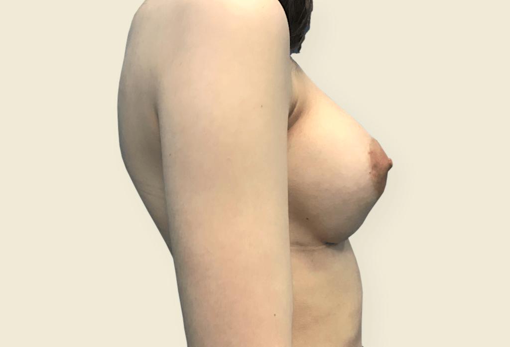 """Piersi tubularne (bulwiaste) — rekonstrukcja piersi protezami okrągłymi 205cc, plastyka brodawek sutkowych z redukcją """"wewnętrznego"""" pierścienia"""