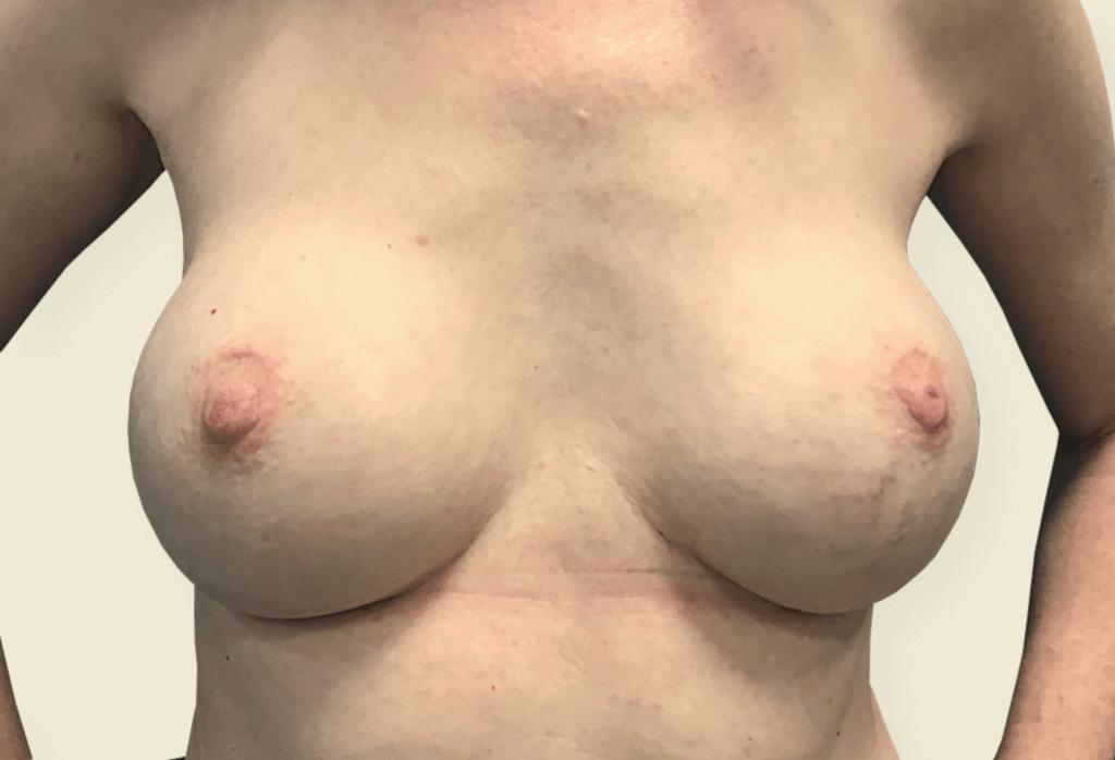Efekt ostateczny i blizny po wymianie protez