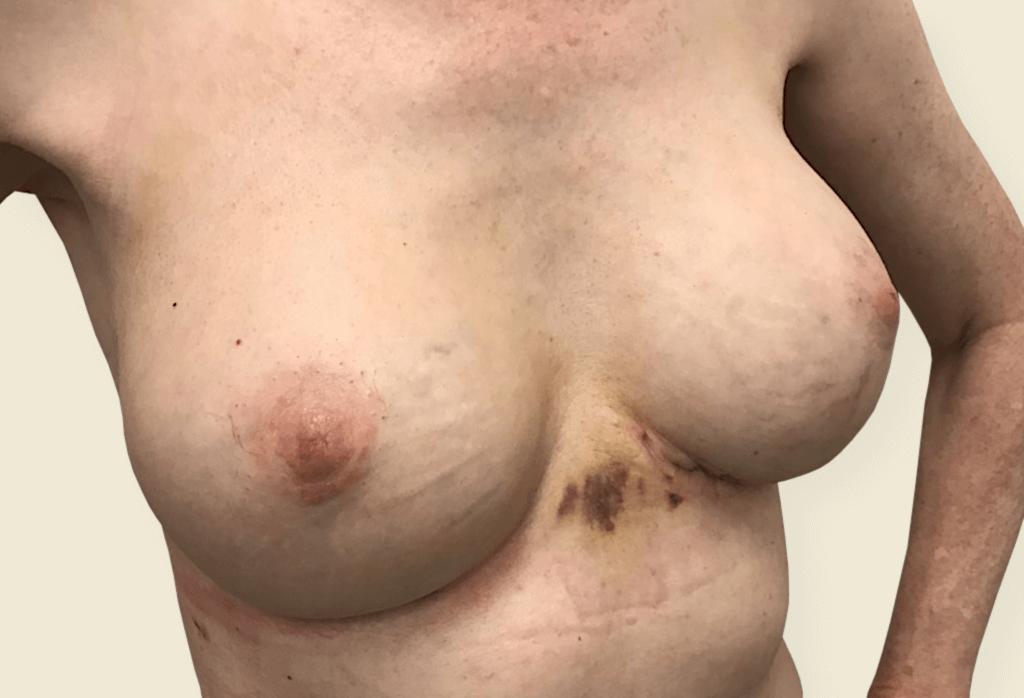 Uszkodzenie implantów, usunięcie implantów wraz z torebką włóknistą i jednoczasowa rekonstrukcją protezami okrągłymi 355
