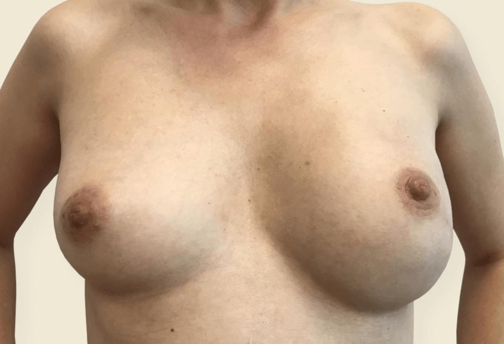 """zamiana rekonstrukcji podmięśniowej piersi lewej na nadmięśniową zużyciem ADM z powodu """"animacji"""", powiększenie piersi prawej, lipo-modeling obu piersi"""