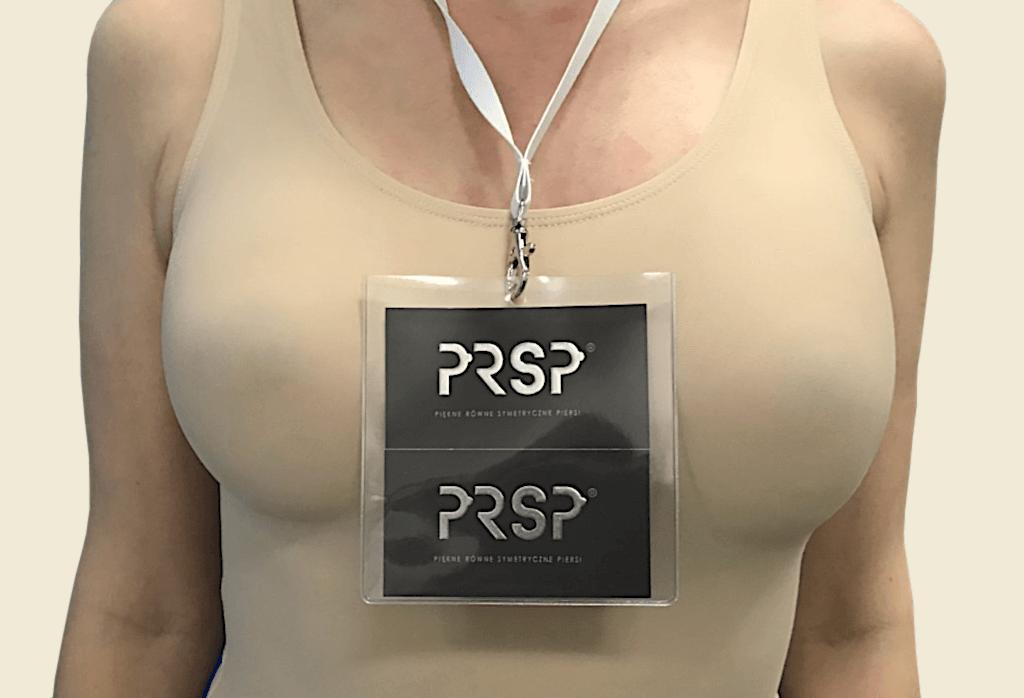"""zamiana rekonstrukcji podmięśniowej piersi lewej na nadmięśniową zużyciem ADM z powodu """"animacji"""", powiększenie piersi prawej, lipo-modeling obu piersi - po."""