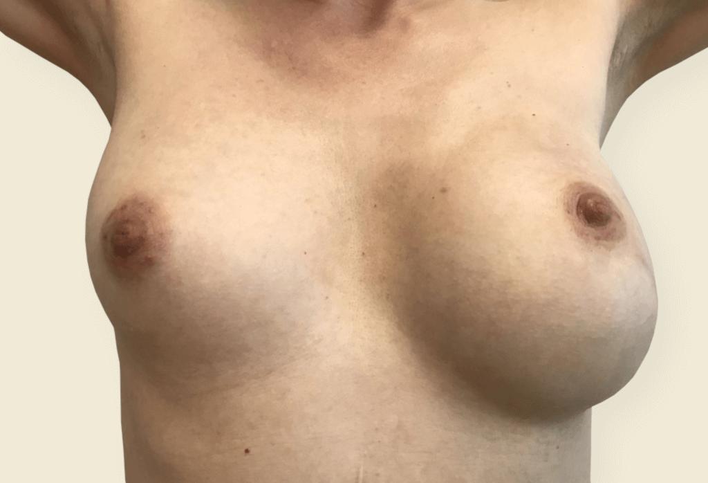 """zamiana rekonstrukcji podmięśniowej piersi lewej na nadmięśniową zużyciem ADM z powodu """"animacji"""", powiększenie piersi prawej, lipo-modeling obu piersi - przed"""