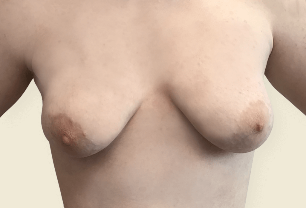 Trudne piersi