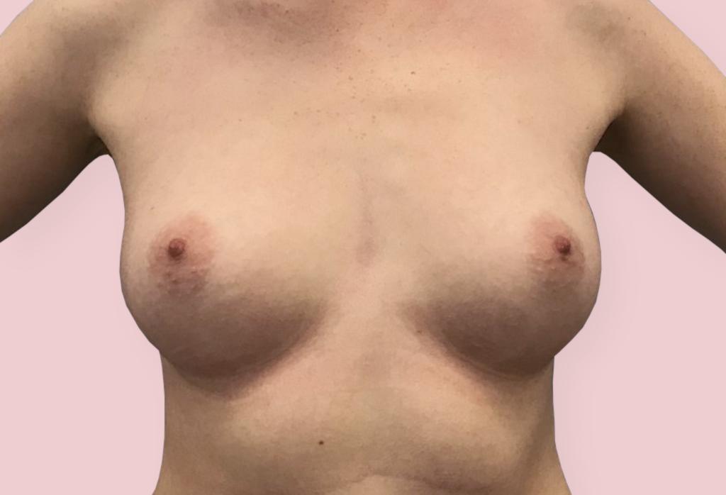 Powiększenie piersi protezami anatomicznym 320