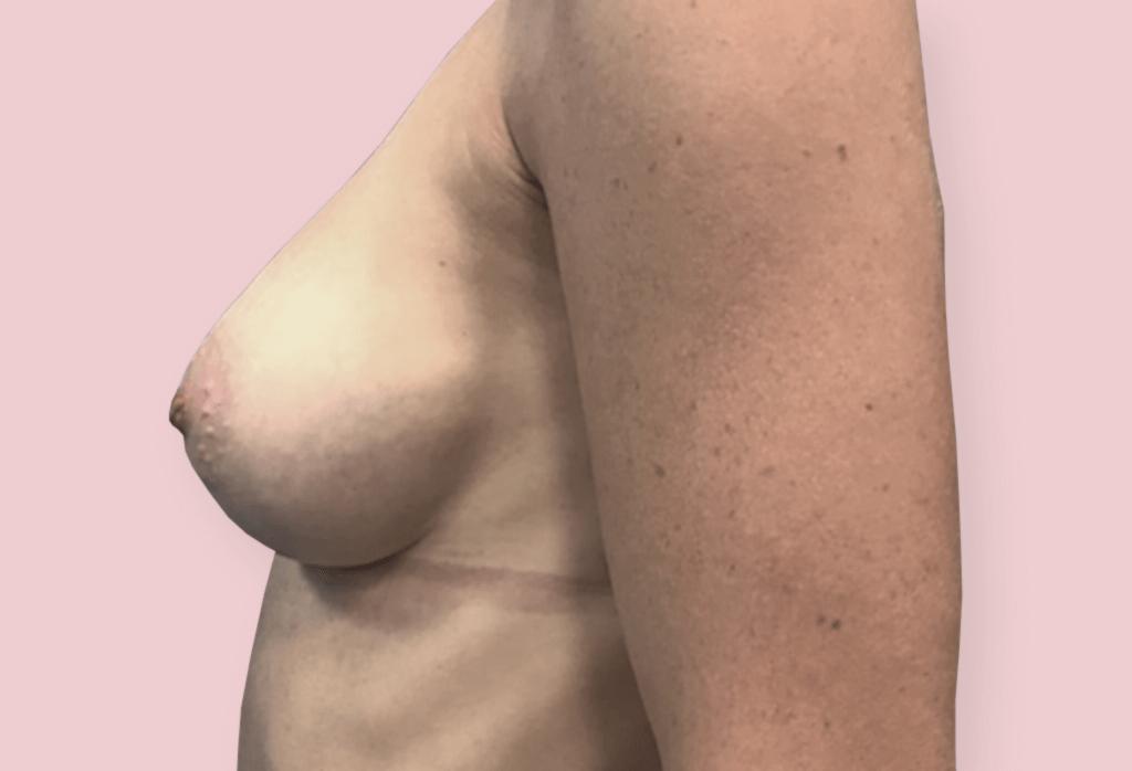 Powiekszenie piersi - wycięcie guza piersi lewej z jednoczasowa rekonstrukcją protezami anatomicznym 325