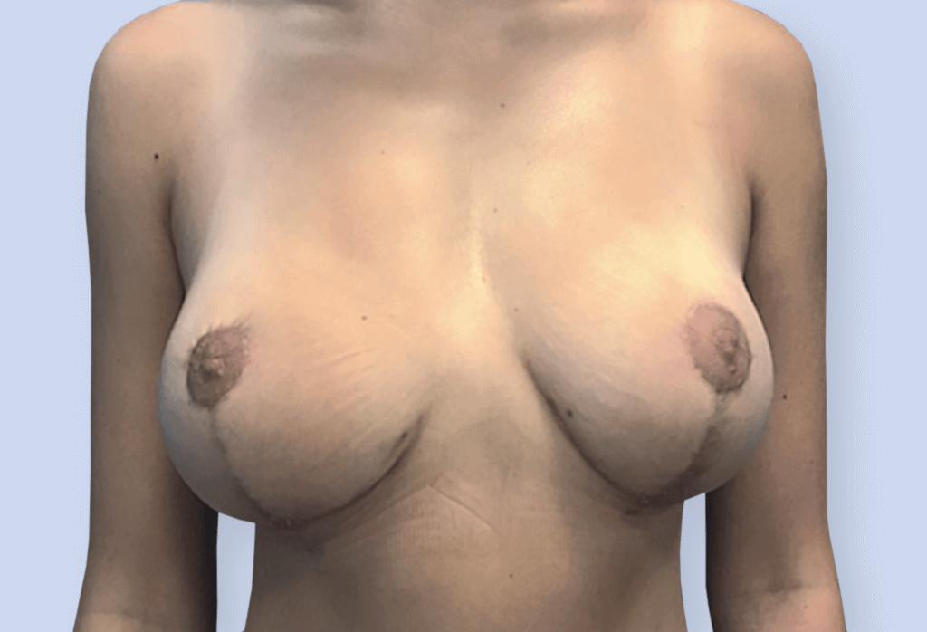 Zmniejszenie piersi u młodej osoby ma zapewnić w przyszłości możliwość karmienia