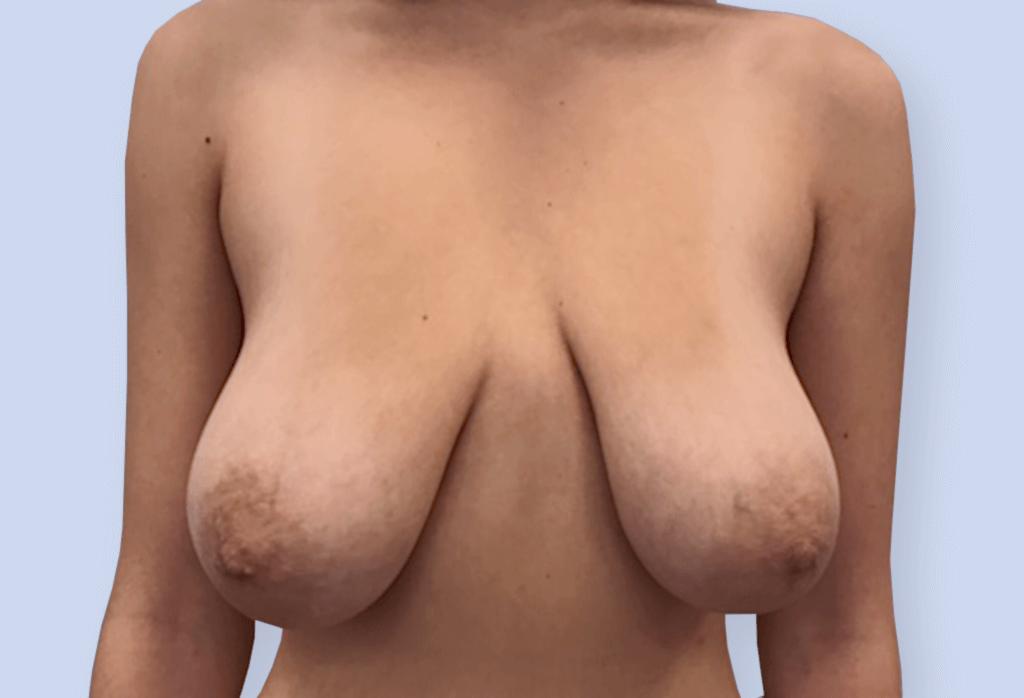 Zmniejszenie z podniesieniem piersi na szypule centralno-przyśrodkowej - przed