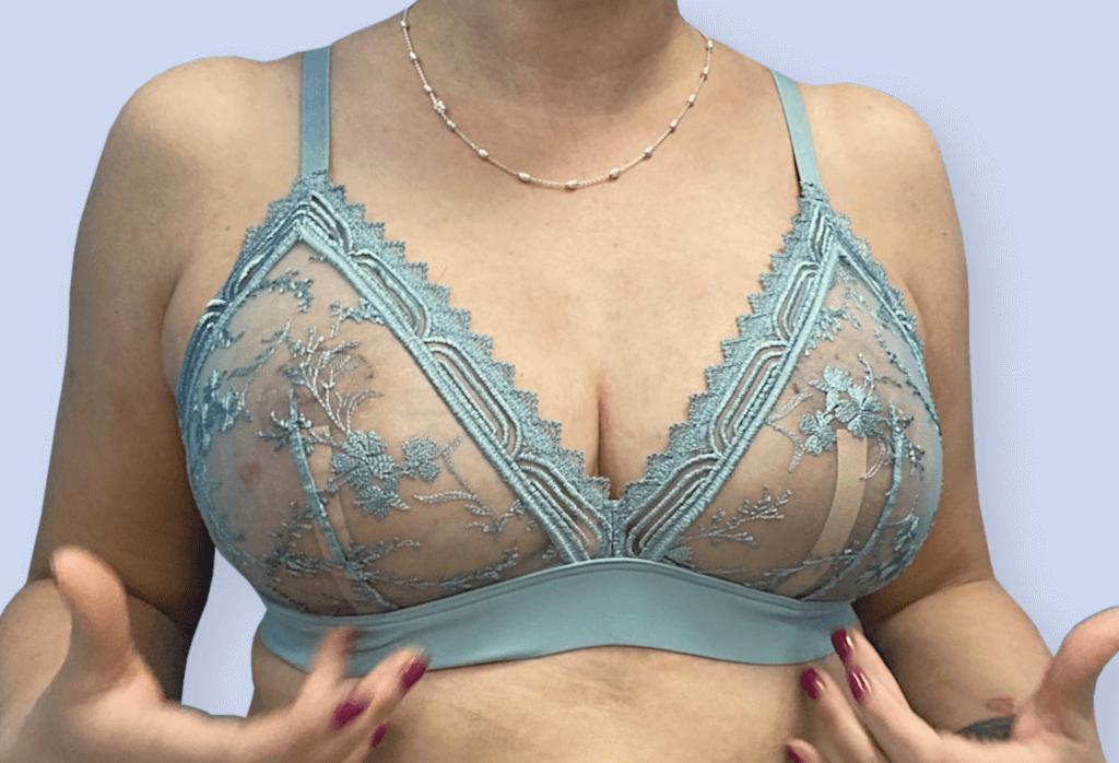 After-Redukcja piersi