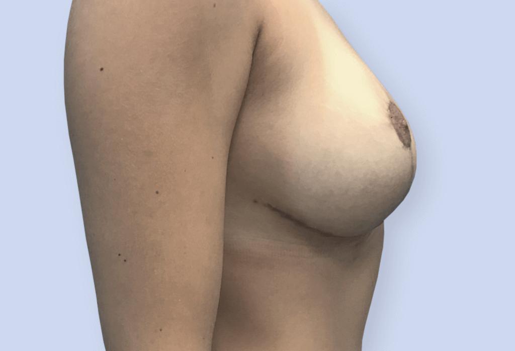 Zmniejszenie z podniesieniem piersi na szypule centralno-przyśrodkowej