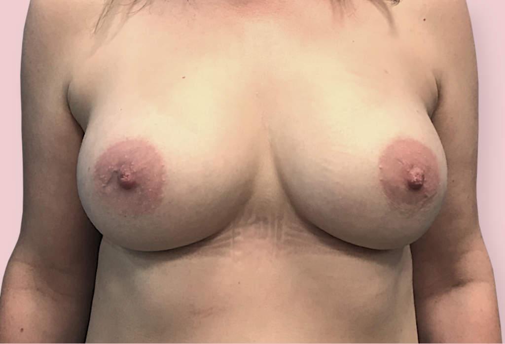 Powiększenie piersi protezami anatomicznym 350