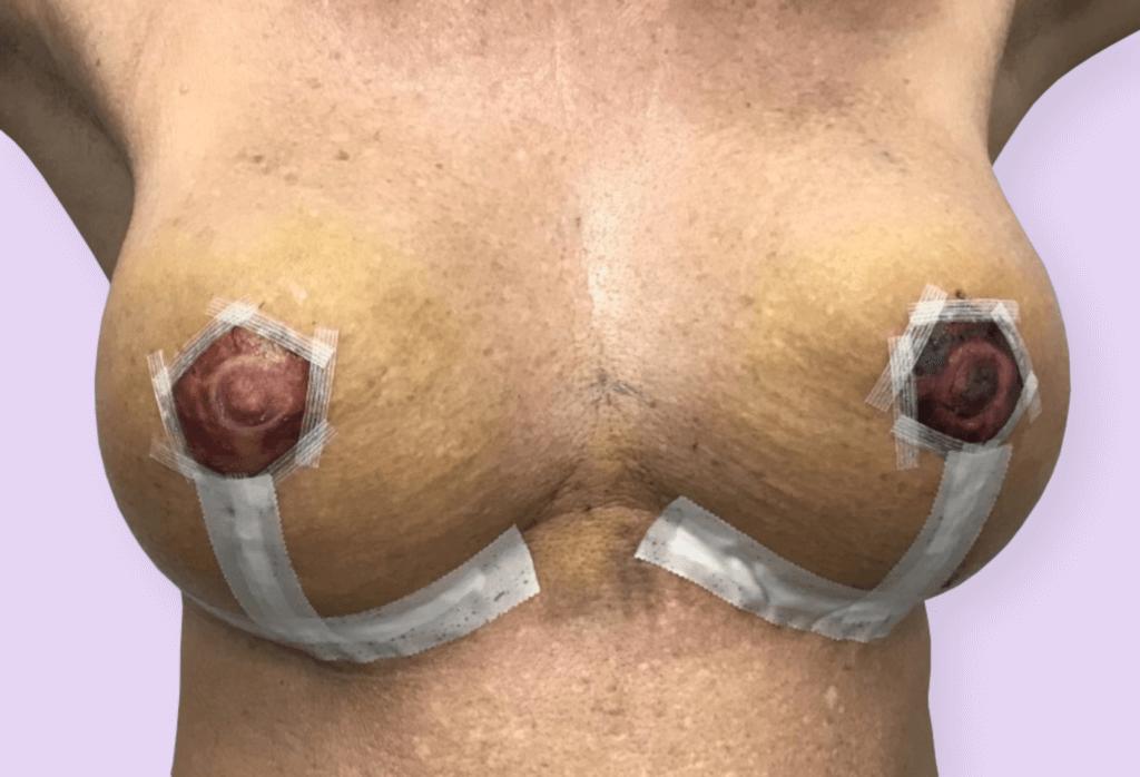 Podniesienie z powiększeniem protezami okrągłymi