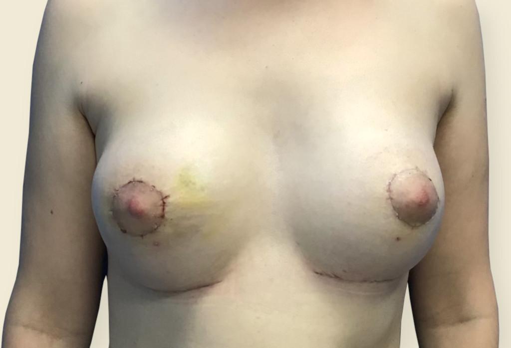 Zespół Polanda piersi lewej skorygowany protezą w wieku nastolatki Obecnie asymetria piersi oraz piersi tubularne
